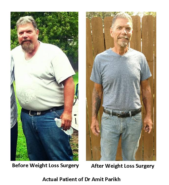 Sudden weight loss rash